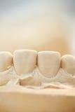 Molde de yeso de dientes delanteros Foto de archivo libre de regalías