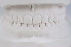 Molde de yeso de los dientes Fotografía de archivo
