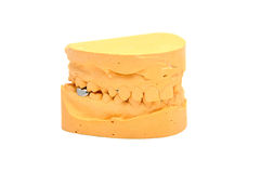 Molde dental Fotografía de archivo libre de regalías
