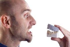 Molde do homem e dos dentes fotografia de stock