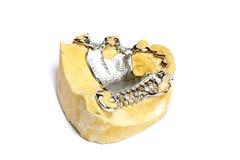 Moldes del yeso dental, dentaduras fotografía de archivo
