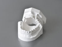 Moldes dentais da correção imagens de stock royalty free