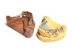 Moldes do emplastro dental, dentaduras foto de stock royalty free
