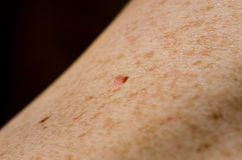 Mole. Close up of mole on human skin stock image