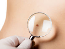 Mole on body a person. Under the magnifying glass Stock Photos