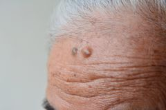 Mole. On old woman skin royalty free stock image