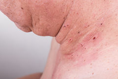 Mole removed via skin graft procedure leaving scar Royalty Free Stock Photography
