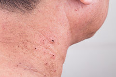 Mole removed via skin graft procedure leaving scar Royalty Free Stock Photo