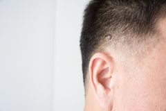 Mole or wart. On the men skin Royalty Free Stock Image