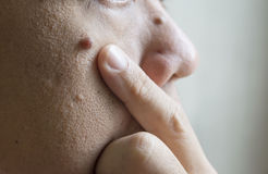 Mole on white men. Skin face royalty free stock photography