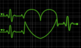 Moment of love and/or birth. Two pulse traces forming valentine shape on electrocardiograph monitor. Also consider as child-bearing new life concept Stock Images