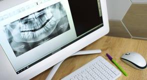 Momentopname van een tand op een computermonitor Röntgenstraal van tanden stock afbeelding