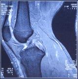 Mon genou MRI - dommages des ligaments cruciformes Photographie stock libre de droits