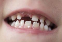 Mond van een jongen met ontbrekende tand Stock Foto's