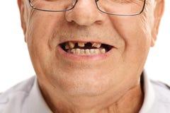 Mond van een oudste met gebroken tanden Stock Afbeeldingen