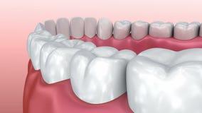 Mondgom en tanden Medisch nauwkeurige tand stock videobeelden