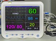 Moniteur cardiaque de Digital Photographie stock libre de droits