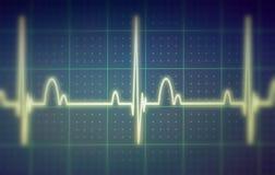 Moniteur d'ECG/électrocardiogramme Photos libres de droits
