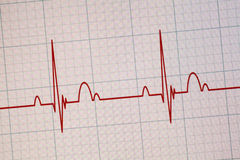 Moniteur d'ECG/électrocardiogramme Images libres de droits