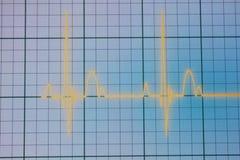 Moniteur d'ECG/électrocardiogramme Photographie stock