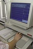 Moniteur d'EKG Photos libres de droits