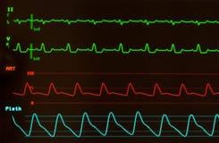 Moniteur de coeur avec le retard intraventriculaire de conduction sur l'électrocardiogramme Photographie stock libre de droits