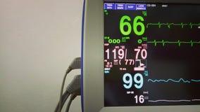 Moniteur médical moderne avec ECG dans la clinique Photos libres de droits