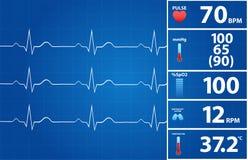 Moniteur moderne d'électrocardiogramme Image libre de droits