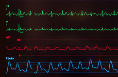Monitor with Atrial Flutter Stock Image