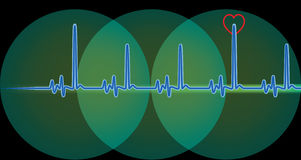 Monitor with blue heart beat Stock Image