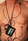Monitor cardíaco do chicote de fios imagem de stock