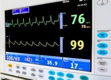 Monitor cardiaco de ICU Imagen de archivo