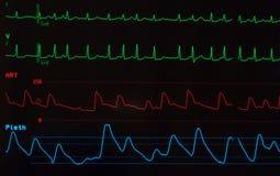 Monitor com fibrilação Atrial Imagens de Stock Royalty Free