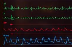 Monitor com vibração Atrial Imagem de Stock