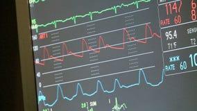 Monitor con las muestras vitales (2 de 2) metrajes