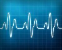 Monitor da batida de coração Fotos de Stock Royalty Free