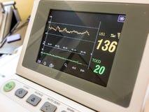 Monitor da tela que mede a taxa cardíaca imagens de stock