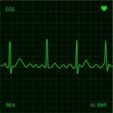 Monitor de coração Fotografia de Stock