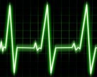 Monitor de coração Fotografia de Stock Royalty Free
