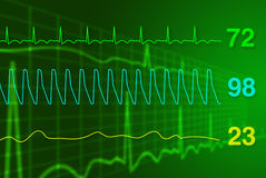Monitor de coração Fotos de Stock Royalty Free