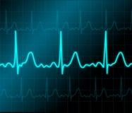 Monitor de coração ilustração do vetor