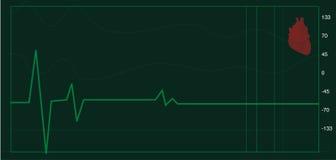 Monitor de coração Imagens de Stock