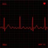 Monitor de coração vermelho Imagens de Stock Royalty Free