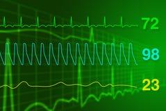 Monitor de corazón Fotos de archivo libres de regalías