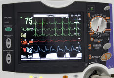 Monitor de ECG Imagem de Stock Royalty Free