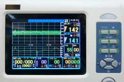 Monitor de ECG Foto de Stock Royalty Free