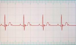 Monitor de ECG/ECG Foto de Stock