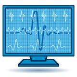 Monitor del cardiograma Fotografía de archivo libre de regalías
