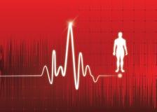 Monitor di cuore Immagini Stock Libere da Diritti