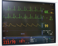 Monitor display. Vital signs  portable monitoring equipment in intensive care unit Royalty Free Stock Photo